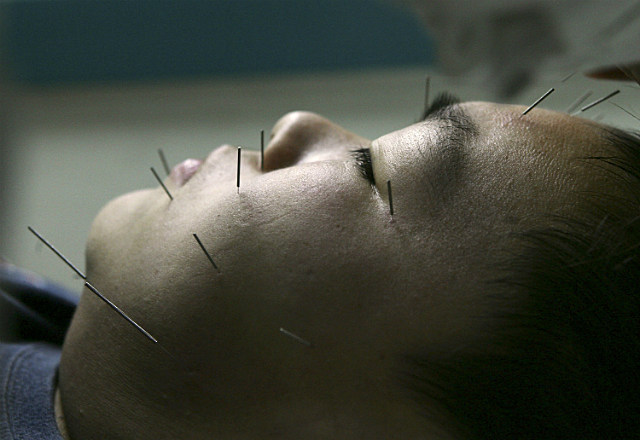 acupuncture teenager