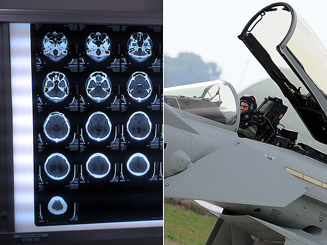 Electricity to the brain, Air Force